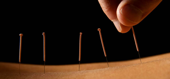 Acupuncture at yonge and finch